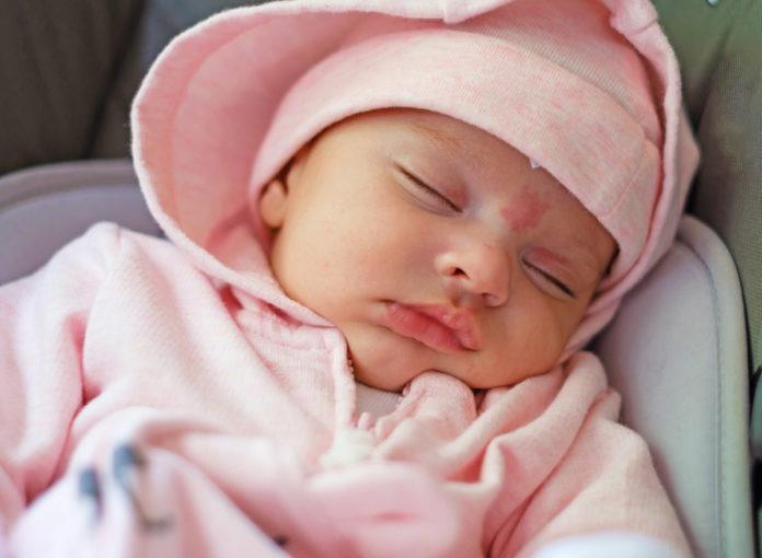 Viele Babys haben einen Storchenbiss im nacken, auf der Stirn oder woanders