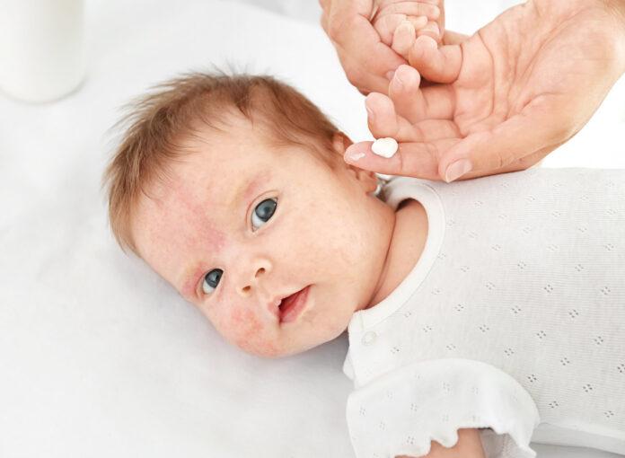 Ausschlag beim Baby